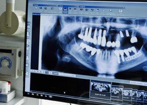 Implantologie Behandlungsspektrum